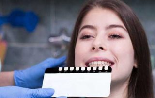 All you should know about Teeth Whitening