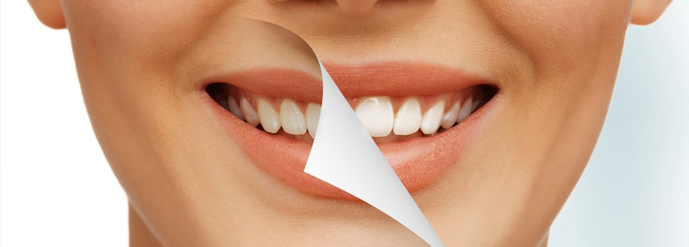 Let's Debunk Some Myths About Cosmetic Dentistry
